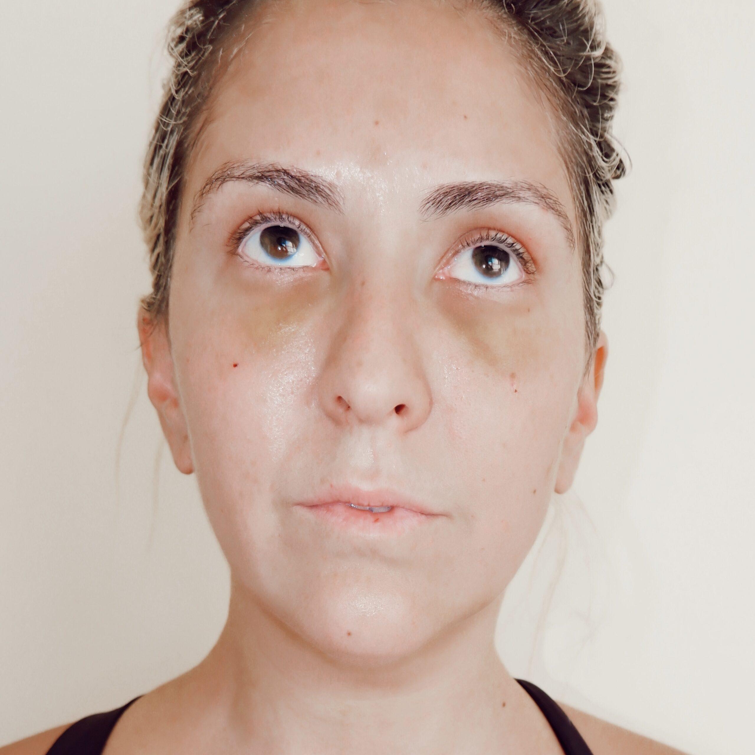Liposuction Before and After Photos, Lipo Photos, Dr. Tanya Judge, Kat Ensign, Katwalksf, SF Plastic Surgery, San Francisco Plastic Surgeon, Best Plastic Surgeon San Francisco